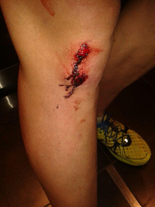 Argus wound
